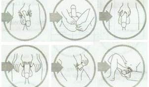 varpos forma ir aprašymas ką daryti kad būtų normali erekcija