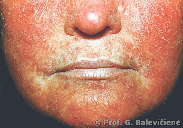kontaktinis varpos dermatitas
