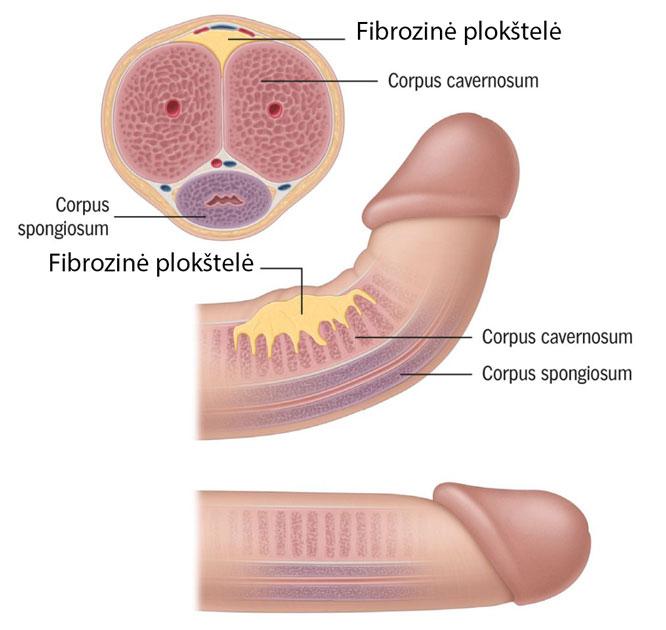 diskomfortas erekcijos metu koks yra nario dydzio skirtumas