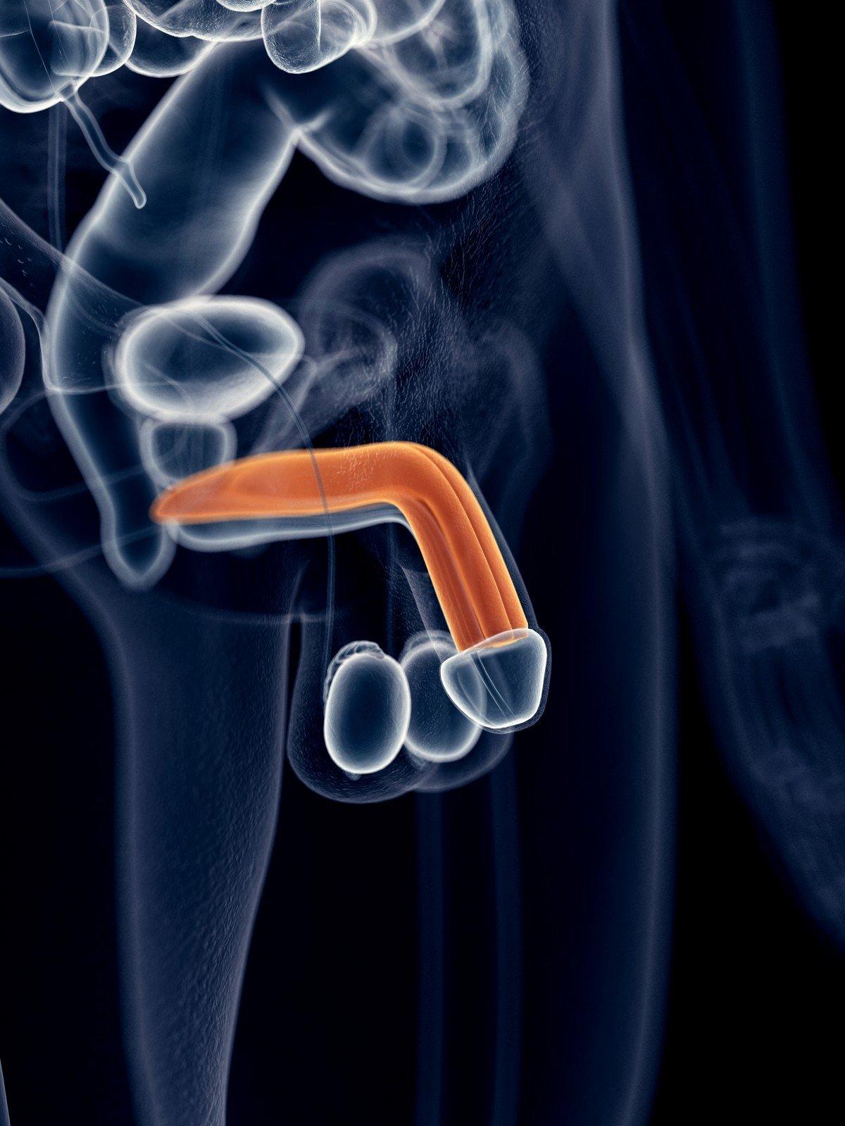 fizioterapijos erekcija varpos dėmės