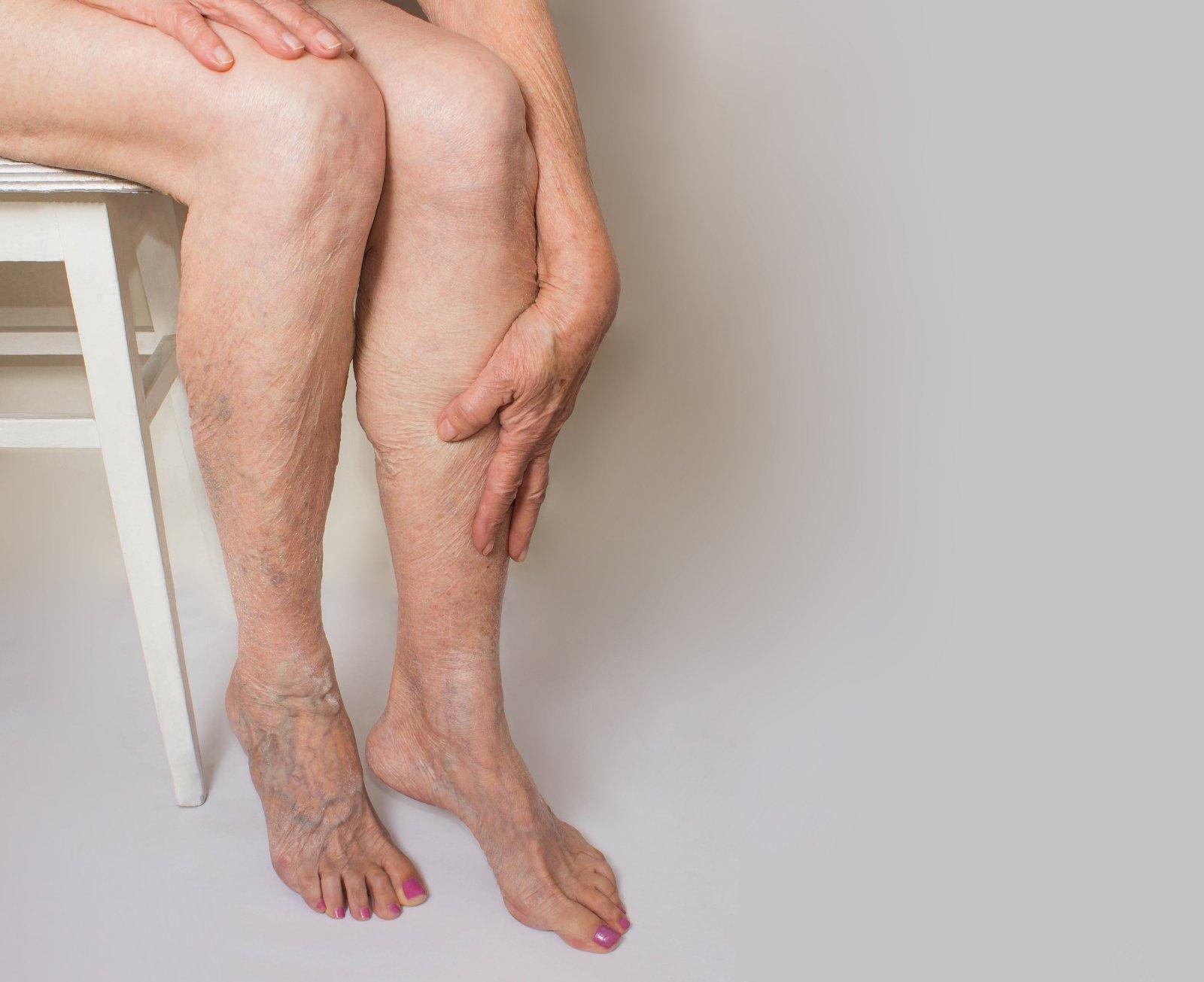didziuliai issipletusios nariai erekcijos problemų 33 m