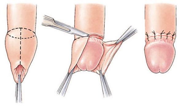 kaip atliekama varpos operacija prarasta erekcija ir susijaudinimas